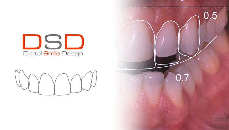 DSD-diseno-sonrisa-digital